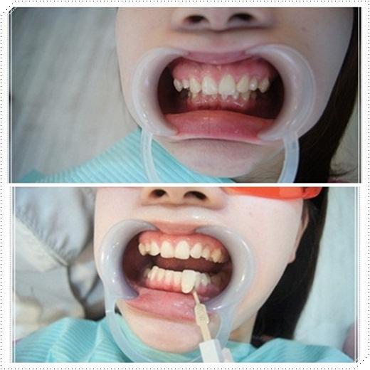 冷光牙齒美白介紹-牙醫