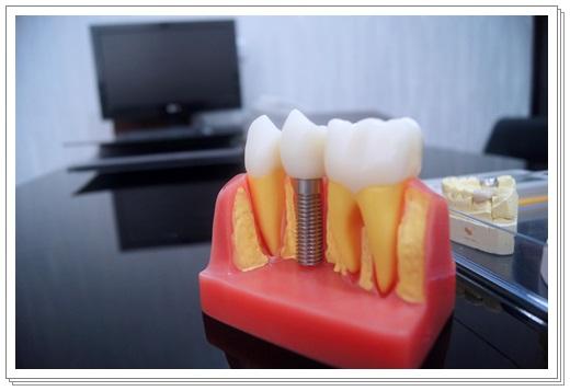 台中植牙專業-牙醫