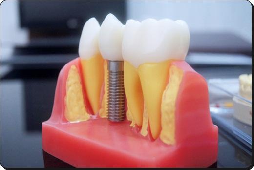 台中植牙信賴-牙醫診所