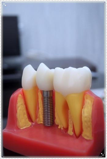 中部植牙推薦-牙醫診所
