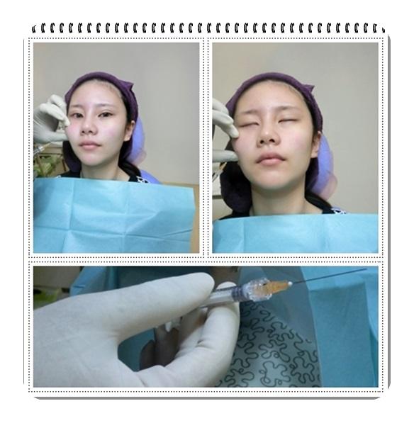 台中推薦打晶亮瓷-整形外科診所