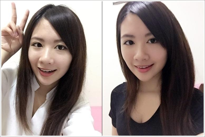 台中醫美診所評價-整形外科診所
