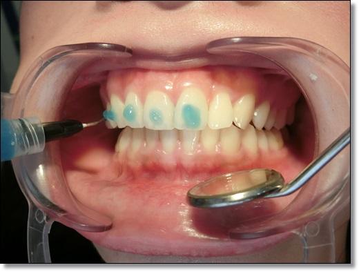 台中矯正牙齒費用-牙醫