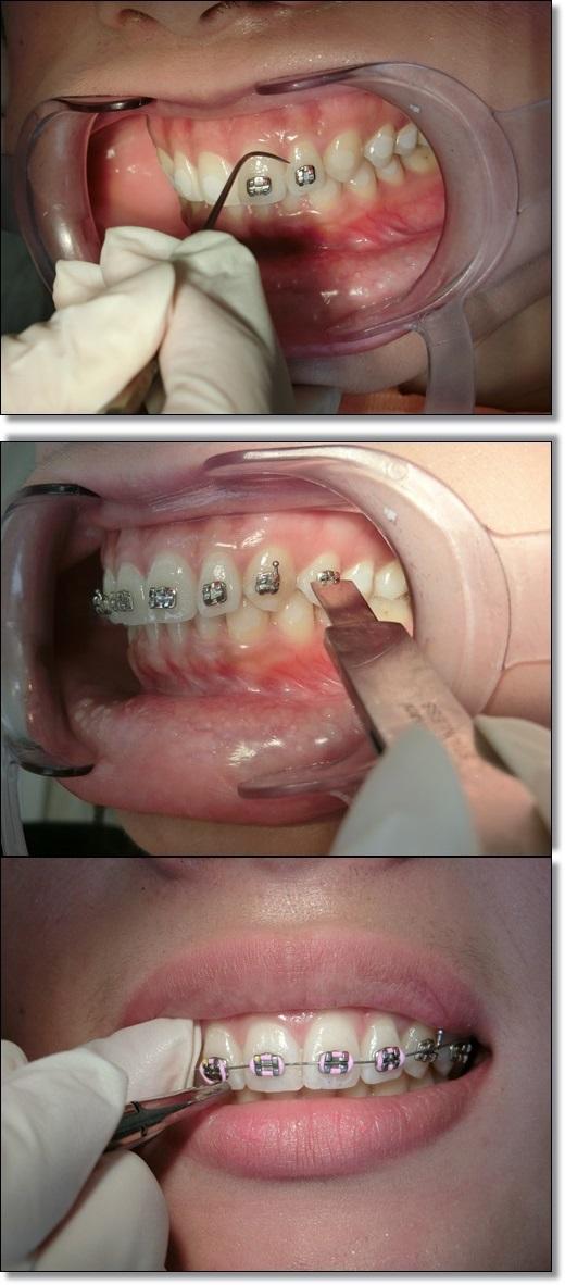 牙齒矯正專科-牙醫