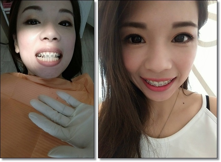 台中牙齒矯正權威-牙醫