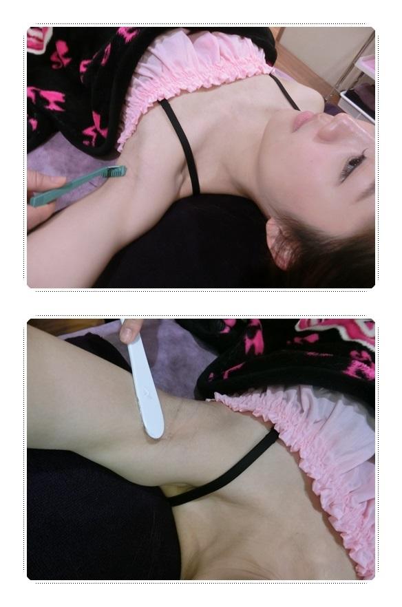 台中除毛診所推薦-診所