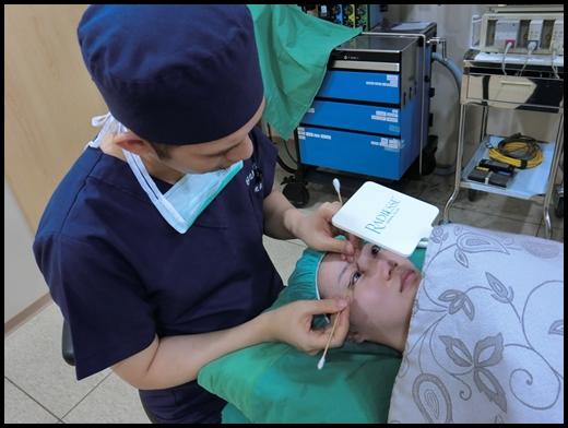 台中釘書針雙眼皮-潘朵拉美學整形外科