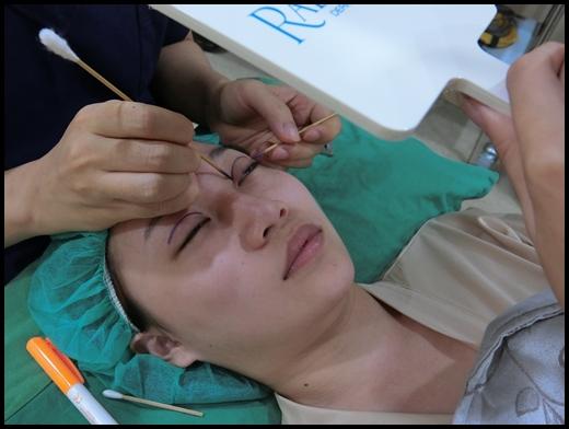 台中雙眼皮整型-潘朵拉美學整形外科