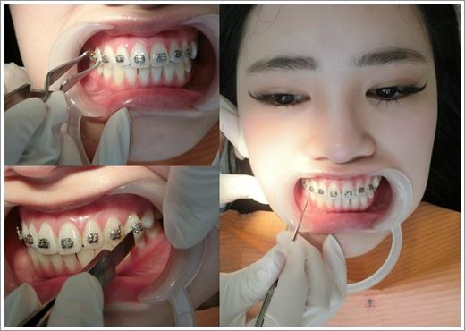 台中牙齒矯正分期-牙醫