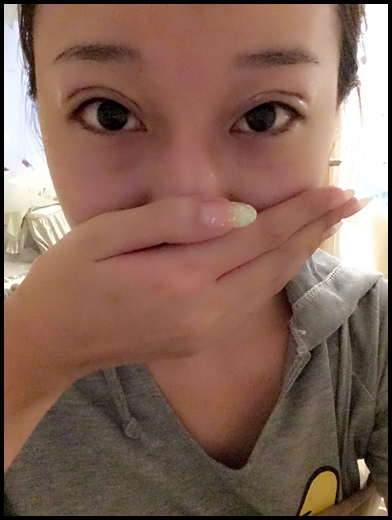 台中韓式釘書機雙眼皮-潘朵拉美學整形外科