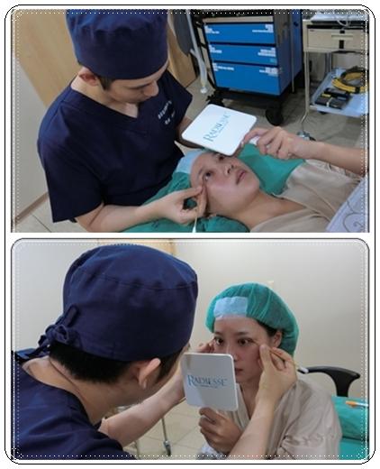 台中縫雙眼皮推薦-潘朵拉美學整形外科