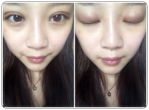 雙眼皮整型心得-潘朵拉美學整形外科