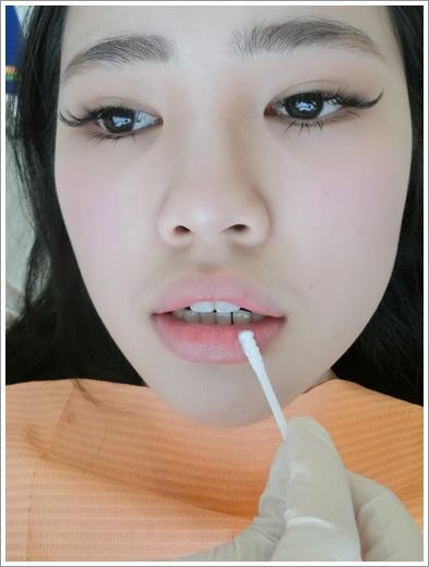 牙齒矯正分期-牙醫