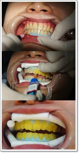 冷光美白牙齒-牙醫