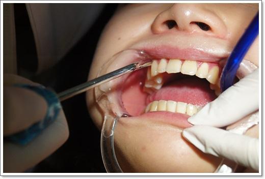 冷光牙齒美白推薦-牙醫