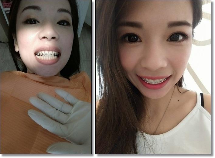 牙齒矯正權威-牙醫
