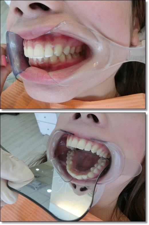 台中牙齒矯正推薦-牙醫