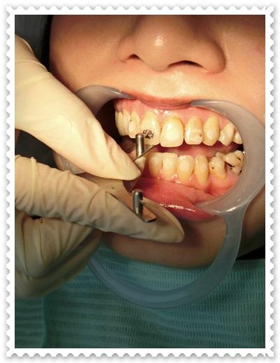 牙齒矯正醫生推薦-
