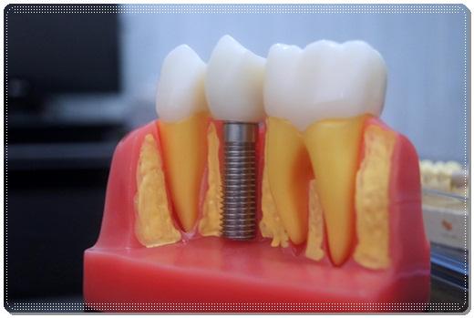 台中植牙權威-牙醫