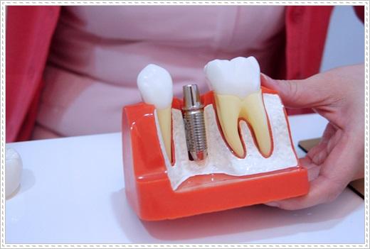 台中植牙醫師-牙醫