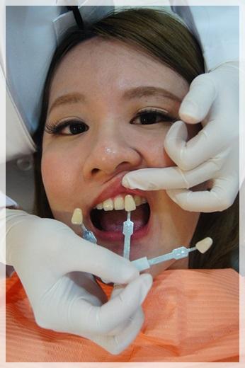 牙齒冷光美白-牙醫