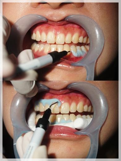 台中冷光牙齒美白價位-牙醫