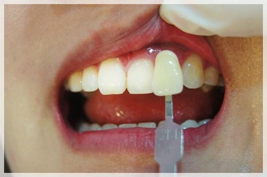 美白牙齒貼片-牙醫