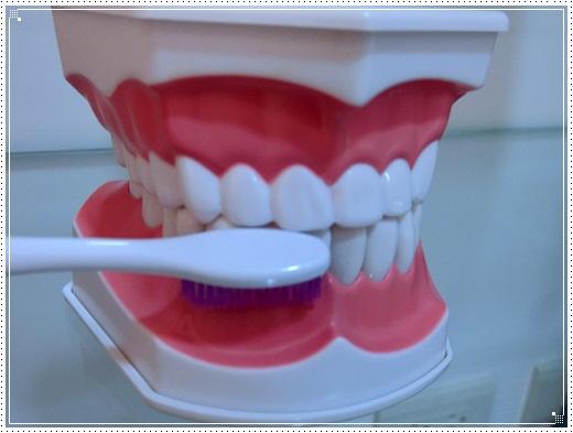 台中植牙價格-牙醫