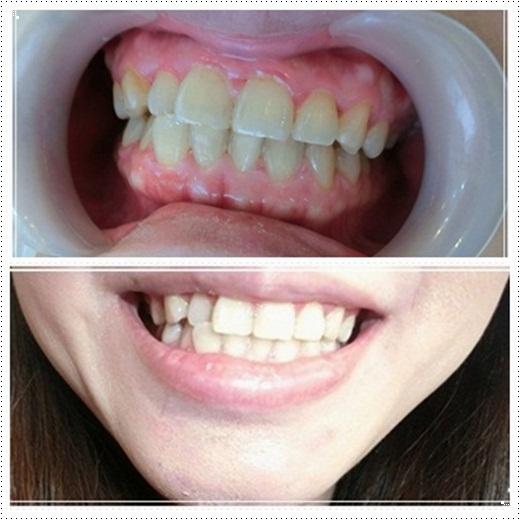 台中冷光牙齒美白-牙科