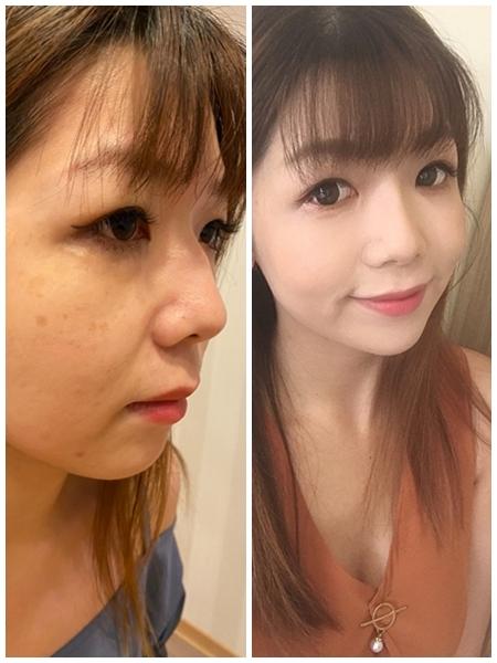 【台中醫美診所】劃時代的微肉毒微整形!玻尿酸山根、下巴打造完美臉部輪廓!!