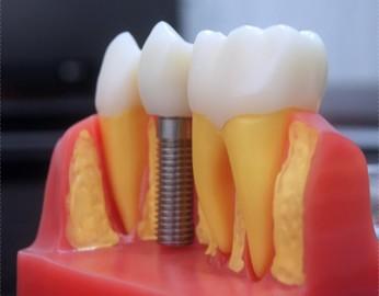 高雄,植牙,牙醫診所,牙醫,高雄植牙,高雄牙醫,高雄植牙價格,高雄牙科推薦,高雄推薦牙醫,高雄左營牙醫推薦,左營牙醫推薦,植牙分期,牙醫權威,高雄牙醫師推薦,牙科醫生推薦,高雄植牙價格查詢,高雄植牙分期,高雄牙醫權威,高雄牙科醫生,高雄微創植牙價格,高雄牙醫植牙推薦,高雄植牙診所推薦